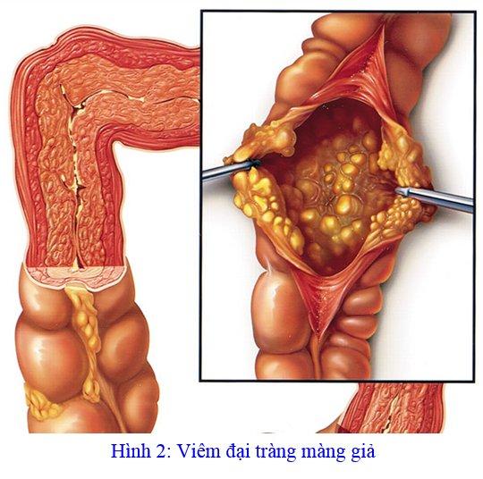 Kết quả hình ảnh cho bệnh viêm đại tràng