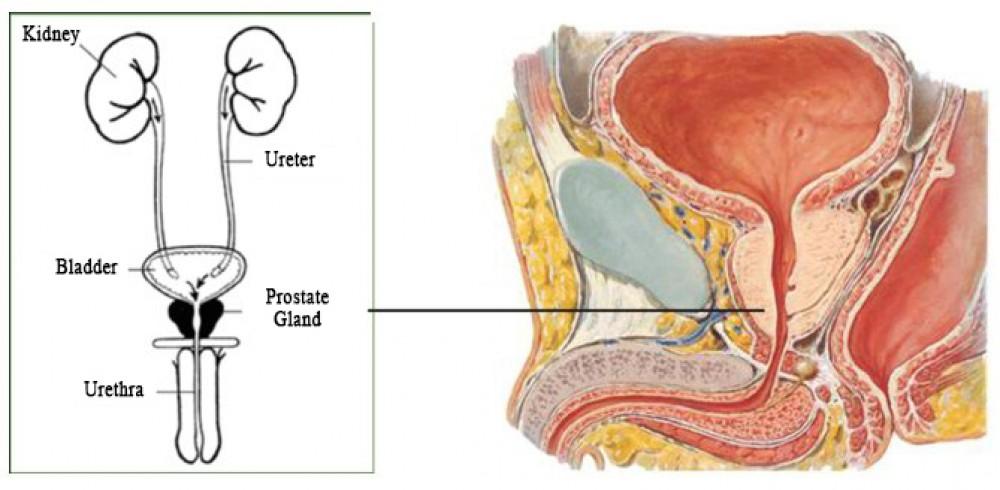 Benign Prostatic Hyperplasia Benign Enlargement Of The Prostate